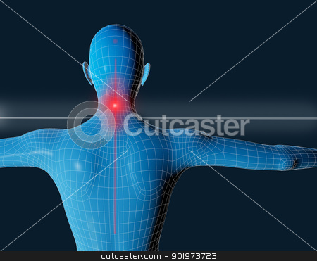 pain in the neck  stock photo, 3d mesh  human with pain in the neck and kidney by carloscastilla