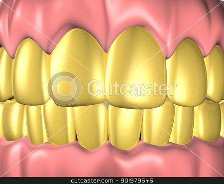gold teeth stock photo, 3d image of teeth with gold teeth by carloscastilla
