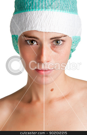 Skin care stock photo, Before and after portrait of a young woman that undergone a skin treatment by ruigsantos