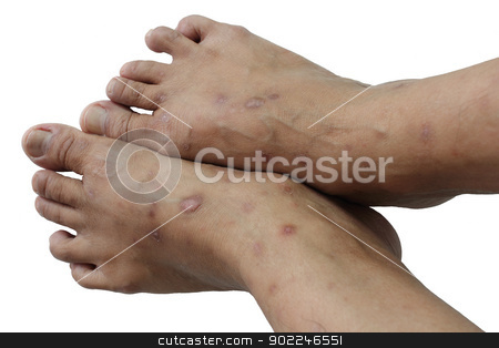 Psoriasis is a chronic stock photo, non-contagious disease that affects mainly the skin by Suphatthra China