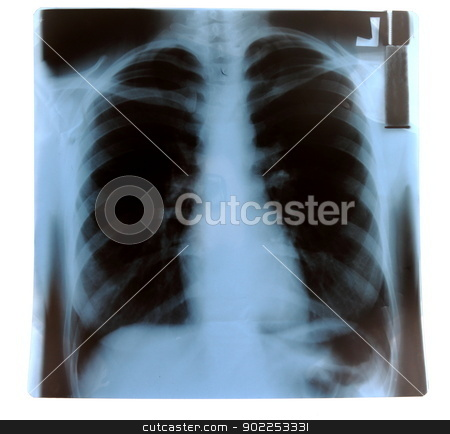 X-Ray stock photo, X-Ray of healthy, non-smoker person's lungs. by MarcinSl1987