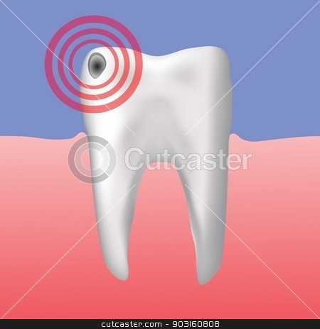 hole in the tooth stock vector clipart, colorful illustration with hole in the tooth for your design by valeo5