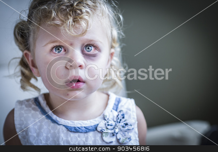 Sad, Bruised and Frightened Little Girl stock photo, Sad and Frightened Little Girl with Bloodshot and Bruised Eyes. by Andy Dean