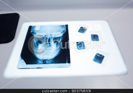 Close up of a x-ray of a human skull on the table  stock photo, Close up of a x-ray of a human skull on the table at the dental clinic by Wavebreak Media
