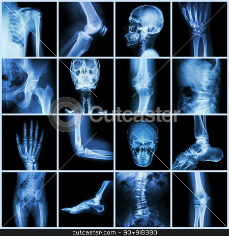 Collection human joint ( skull head neck shoulder chest thorax shoulder arm elbow forearm wrist hand finger palm spine back pelvis thigh knee leg foot ankle toe) stock photo, Collection human joint ( skull head neck shoulder chest thorax shoulder arm elbow forearm wrist hand finger palm spine back pelvis thigh knee leg foot ankle toe) by stockdevil