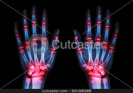 multiple joint arthritis both hands ( Gout , Rheumatoid ) on black background stock photo, multiple joint arthritis both hands ( Gout , Rheumatoid ) on black background by stockdevil