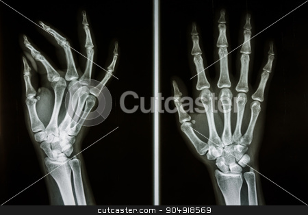 bones of human hands stock photo, Film X-ray show bones of human hands by stockdevil