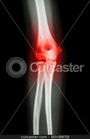 X-ray human's elbow and arthritis (Gout , Rheumatoid) stock photo, X-ray human's elbow and arthritis (Gout , Rheumatoid) by stockdevil