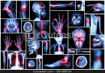 X-ray multiple part of human with multiple disease (stroke, arthritis, gout, rheumatoid, brain tumor, osteoarthritis, etc) stock photo, X-ray multiple part of human with multiple disease (stroke, arthritis, gout, rheumatoid, brain tumor, osteoarthritis, etc) by stockdevil