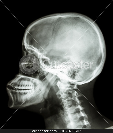 human's skull and cervical spine stock photo, film x-ray skull lateral : show human's skull and cervical spine by stockdevil
