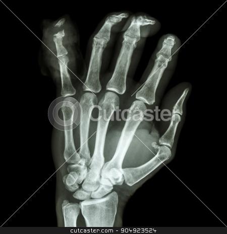 fracture distal pharange little finger stock photo, film x-ray hand AP : show fracture distal pharange little finger by stockdevil