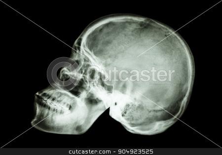 normal human's skull (asian) stock photo, film x-ray normal human's skull (asian) by stockdevil