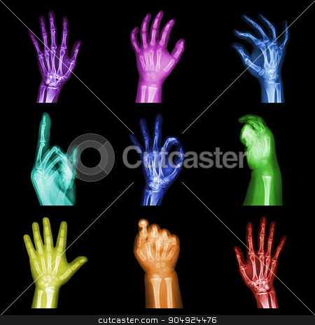 Collection of colorful x-ray hands stock photo, Collection of colorful x-ray hands by stockdevil