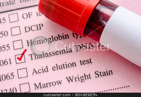 Sample blood in blood tube for Thalassemia DNA test. stock photo, Sample blood in blood tube for Thalassemia DNA test on request form in laboratory. by Miss. PENCHAN  PUMILA