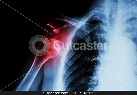 X-ray anterior shoulder dislocation stock photo, X-ray anterior shoulder dislocation by stockdevil