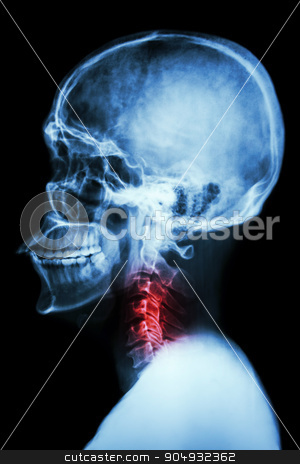 X-ray asian skull and cervical spine and neck pain stock photo, X-ray asian skull and cervical spine and neck pain by stockdevil