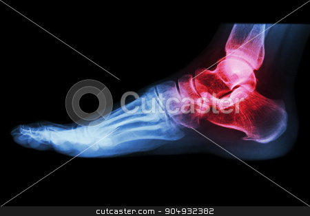 X-ray human's ankle with arthritis  stock photo, X-ray human's ankle with arthritis  by stockdevil