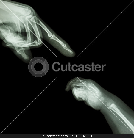 X-ray adult's hand point finger at upper side and baby's hand at lower side stock photo, X-ray adult's hand point finger at upper side and baby's hand at lower side by stockdevil