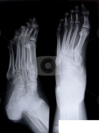 Health medical x ray stock photo, Health medical image of an x ray of the feet by Ivan Montero