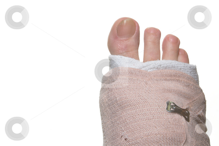 Broken Foot stock photo, A broken foot wrapped up in a temporary bandage. by Robert Byron