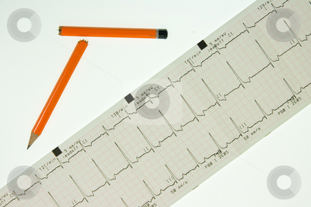 Fast ecg trace with broken pencil stock photo, Visual representation of stress, a fast ecg trace accompanied by a broken pencil by Chris Pole