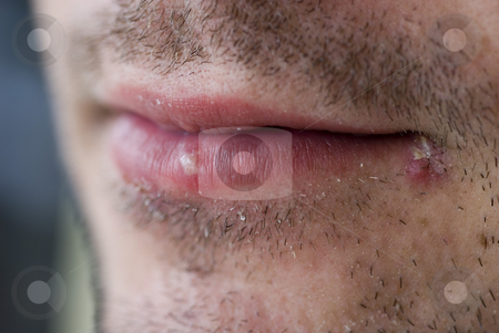 Cold sores (herpes labialis) stock photo, Close up on a man with two cold sores on his lips by Stephen Gibson