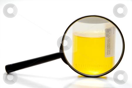 Urine Sample stock photo, A fresh urine sample in a medical container. by Robert Byron