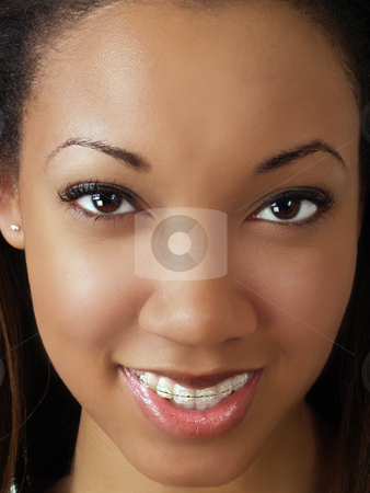 Tight closeup portrait of young black woman stock photo, Tight portrait of black woman with braces upper teeth by Jeff Cleveland