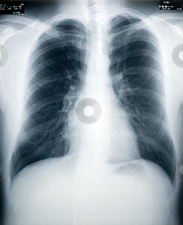 Tuberculosis Screening stock photo, An x-ray of a healthy male chest and lungs (identity numbers and dates have the obfuscated) by Stephen Gibson