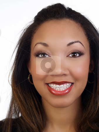 Young black woman with big smile braces upper teeth stock photo, Portrait of young black woman with braces upper teeth by Jeff Cleveland
