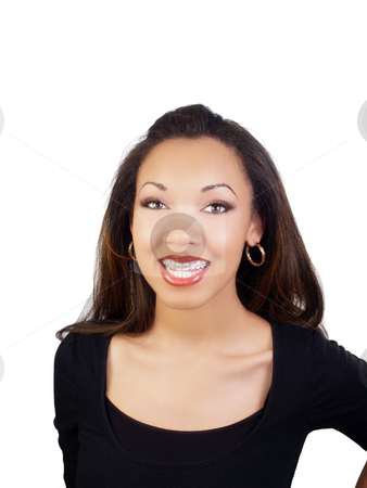 Young black woman smiling with braces on upper teeth stock photo, Smiling portrait of young black woman with braces on upper teeth by Jeff Cleveland