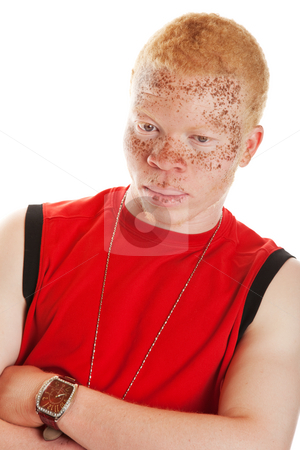 Albino Man stock photo, Portrait of an African albino man with heavily freckled lips and skin. by Brenda Carson