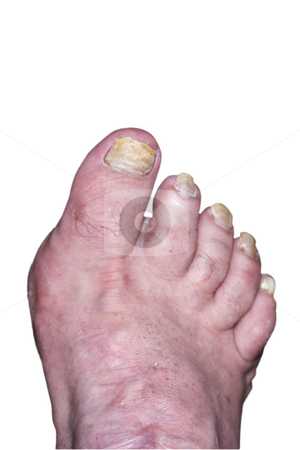 Ugly Foot stock photo, Ugly, deformed foot with toenail fungus, isolated on a white background. by Steve Carroll