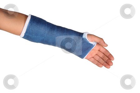 Blue cast on arm stock photo, Blue cast on an arm of a child isolated on white background by Stacy Barnett