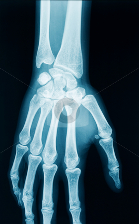 Hand x-ray stock photo, Radiography of a middle aged woman by Laurent Dambies
