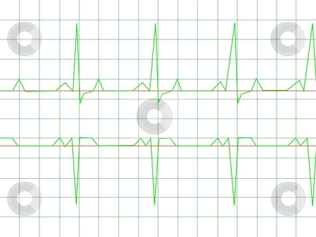 Normal Heart Rhythm stock photo, Normal Heart Rhythm electrocardiogram ECG graph with white background by Henrik Lehnerer