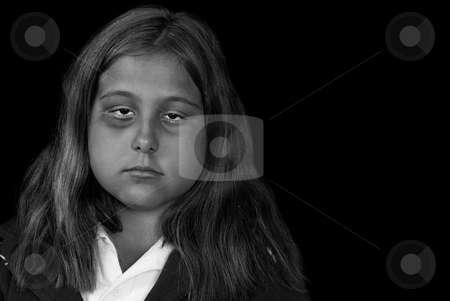 Child Abuse stock photo, Concept image of child abuse or depression, featuring a young girl with a black eye, isolated against a black background by Richard Nelson