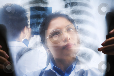 Asian doctors busy working stock photo, Asian doctors busy working on xray result. PS:the image taken from behind the xray print, so it may leave some soft noise on the people image behind it. by Rudyanto Wijaya