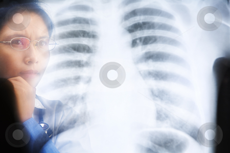 Asian female doctor busy working on x-ray result stock photo, Asian female doctor busy working on x-ray result. PS:the image taken from behind the xray print, so it may leave some soft noise on the people image behind it. by Rudyanto Wijaya