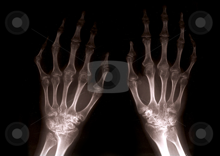 Xray hands stock photo, Close up of xray hands with black background backlight by Michael Travers