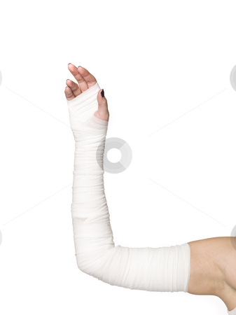 Bandages on an arm stock photo, Bandages on an arm by Anne-Louise Quarfoth