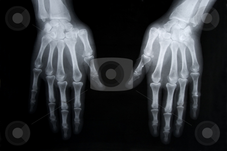 X-ray picture of human hands stock photo, Black and white photo of x-ray picture of human hands by caimacanul
