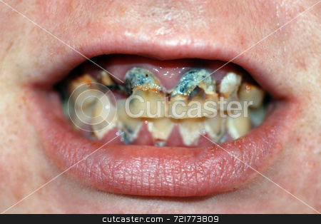 Mouth with Severe Tooth Decay stock photo, A mouth with extremely bad tooth decay and dental caries. by Philippa Willitts