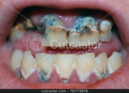 Severe Tooth Decay stock photo, A mouth with numerous extremely decayed teeth. by Philippa Willitts