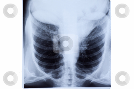 Woman Chest X-ray stock photo, X-ray of the mature woman chest.  by Rognar