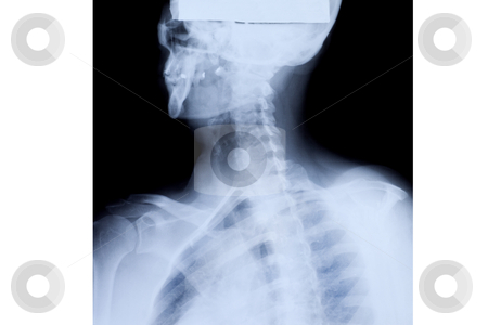 Upper Body X-ray stock photo, X-ray of the mature woman upper body. by Rognar