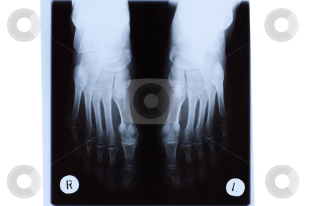 X-ray of Mature Woman Feet stock photo, X-ray of mature woman feet. by Rognar