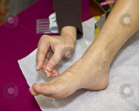 Traditional Chinese Medicine  stock photo, Traditional Chinese Acupuncture shot on location by tab62