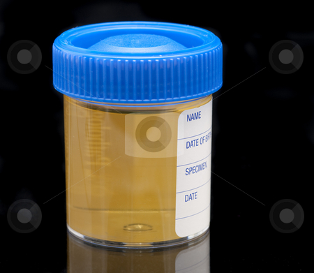 Urine test specimen stock photo, pathology test jar containing a urine sample on a dark background by Stephen Gibson