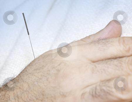 Acupuncture needle in hand stock photo, Closeup of acupuncture needle inserted in male hand by Elena Elisseeva